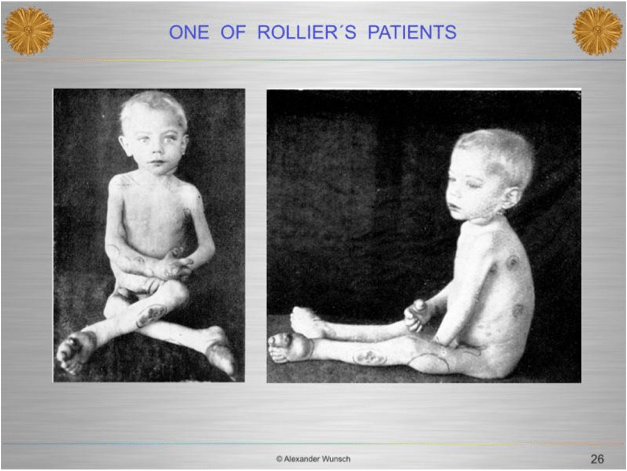 Rolier rickets patient