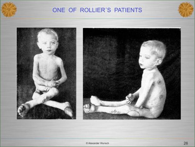 Rolier rickets patient