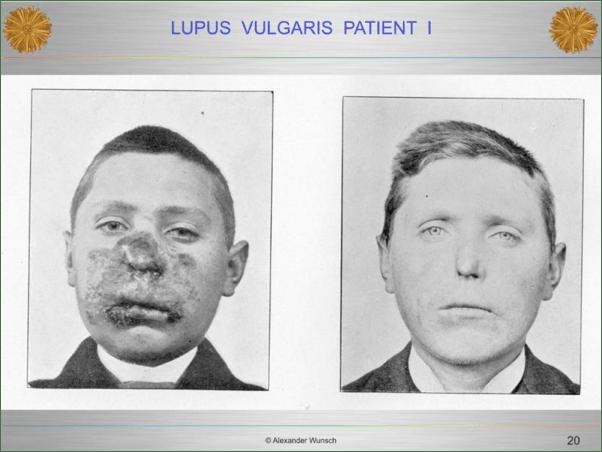 lupis patient 1